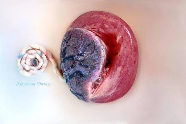 Placenta. Font: Babymoon